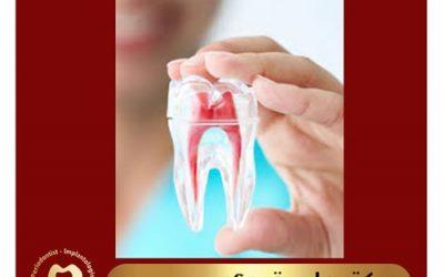 با اندو یا درمان ریشه دندان بیشتر آشنا شوید