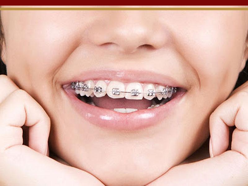 جراحی ارتودنسی دندان