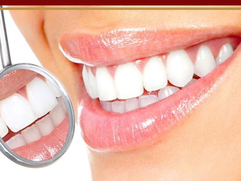 روش های سفید کردن دندان