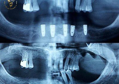 جراحي ٥واحدايمپلنت باتحليل شديداستخوان فك پايين