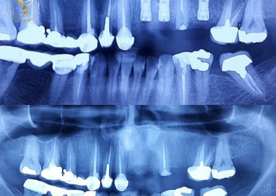 جراحی سه واحد ایمپلنت به همراه بازسازی استخوان
