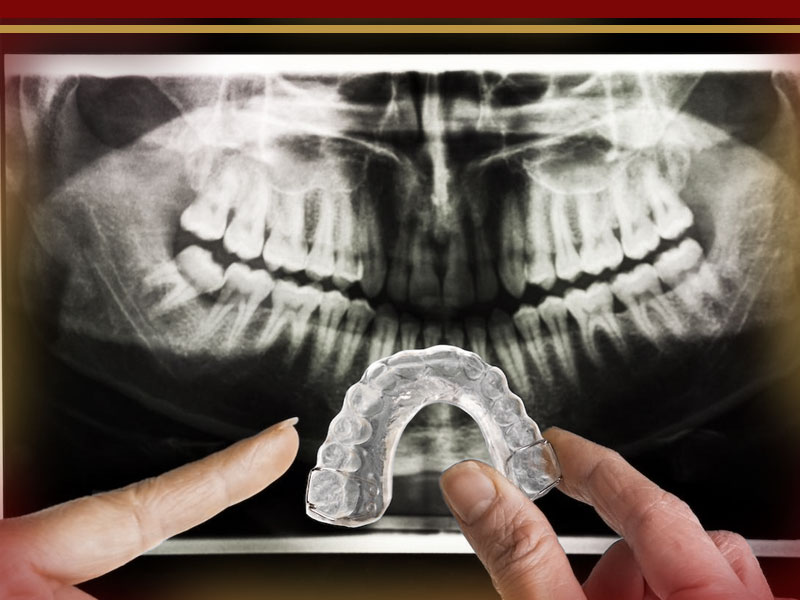 ایمپلنت در افرادی که دندان قروچه دارند