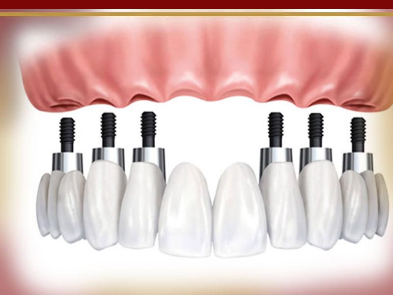 ایمپلنت کامل دندان