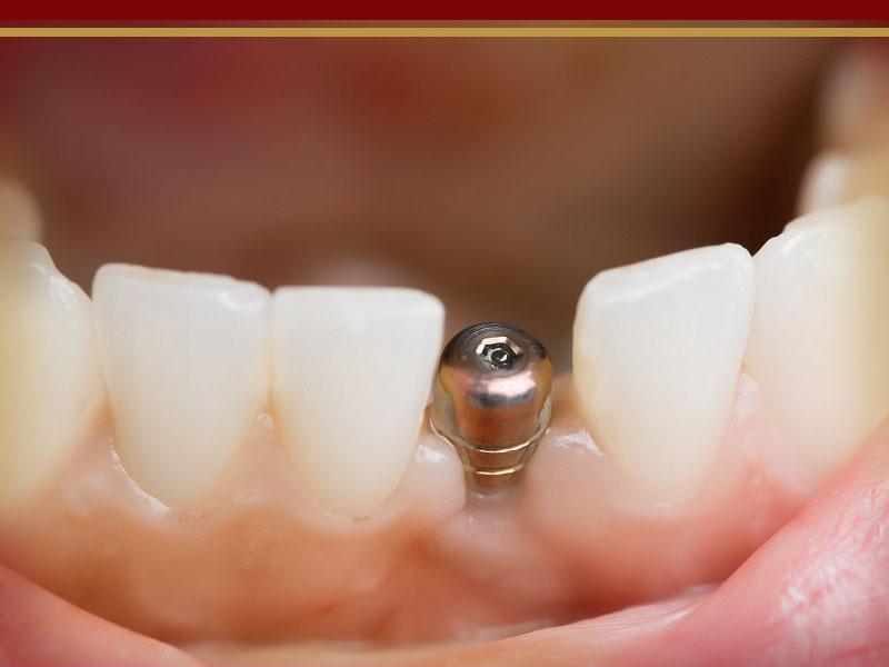 ایمپلنت یک دندان