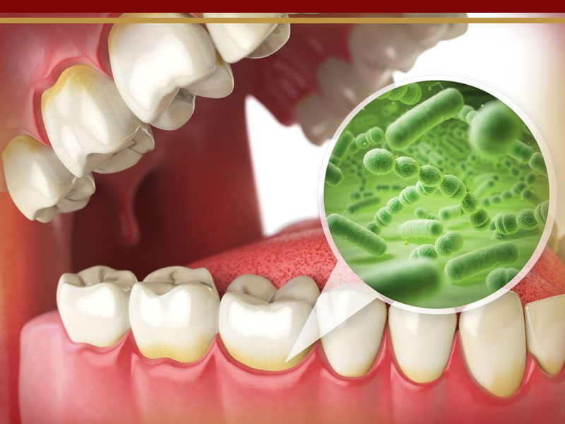 بیماری های ایمپلنت دندان