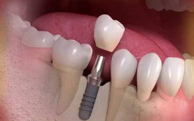 دلایل شکستن ایمپلنت های دندان
