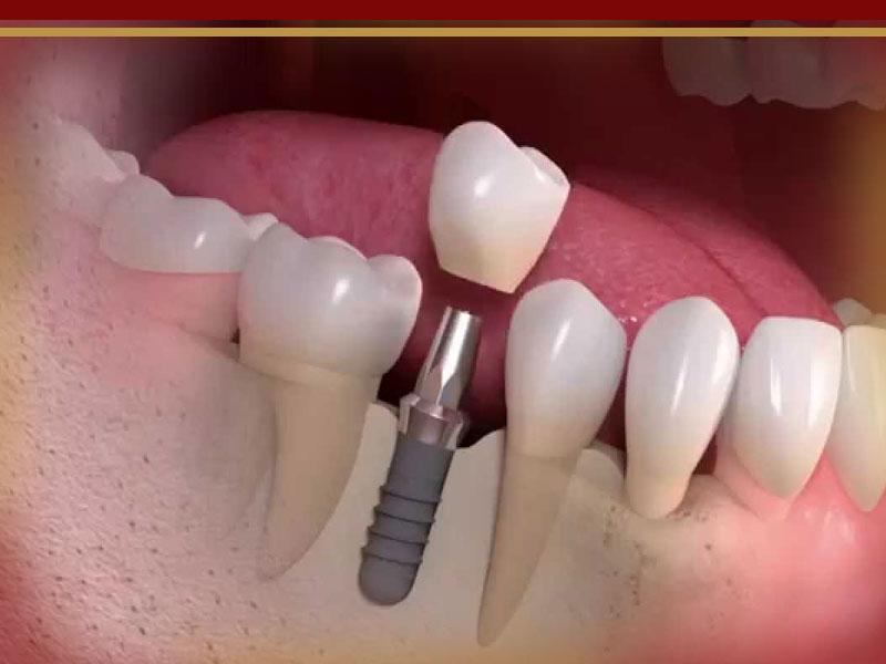 دلایل-شکستن-ایمپلنت-دندان