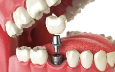 بهترین دندانپزشک برای ایمپلنت در صادقیه چه کسی است؟