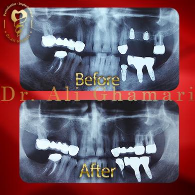 ایمپلنت دندان در غرب تهران