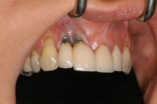 نمونه پس زدن ایمپلنت دندان