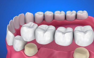 بریج دندان چیست و چه مزایایی دارد؟