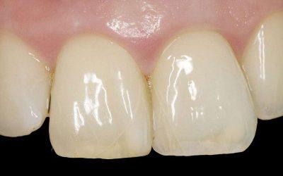 چرا دندان ها ترک می خورند؟